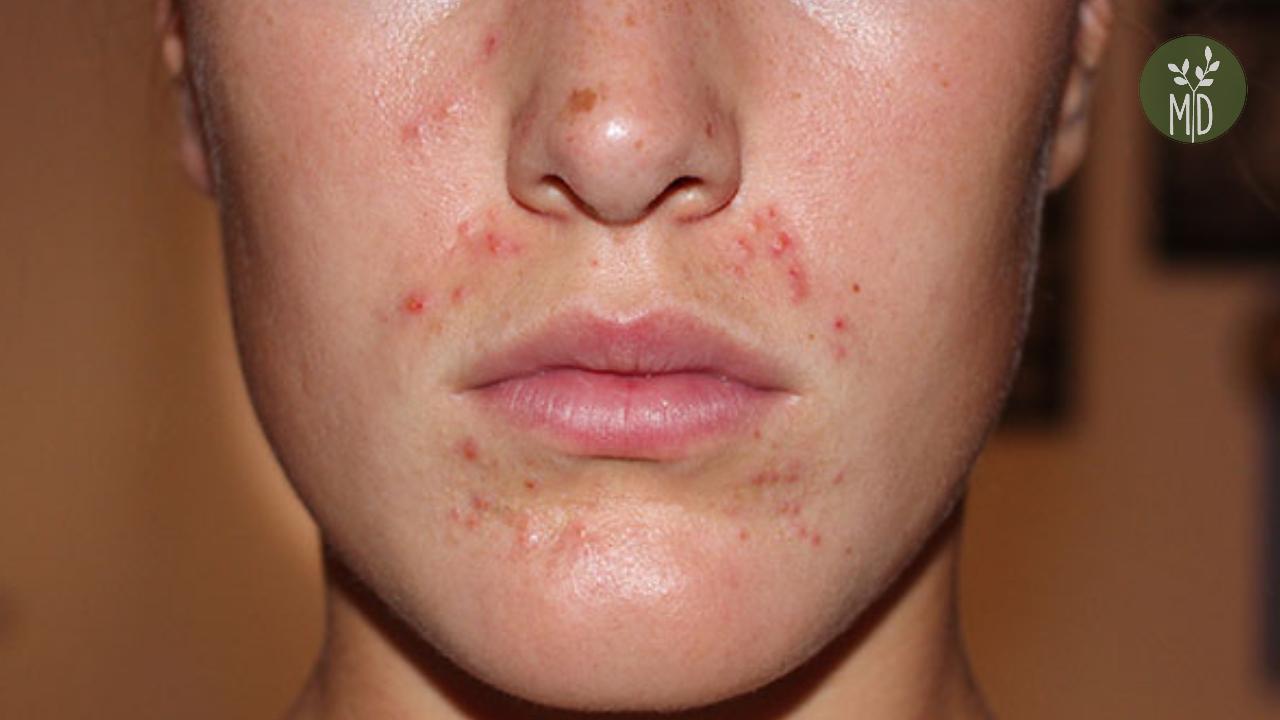 vörös foltok a száj kezelés körül krémek kenőcsök pikkelysömörre a fejen
