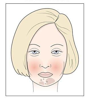 bőrkiütés vörös foltok formájában, viszketés felnőtteknél pikkelysömör kezelésére a fejbőrön