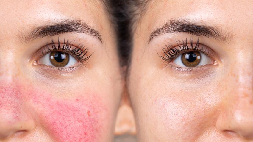 az arc kopása piros foltot hagyott citosztatikumok gyógyszerek pikkelysömör