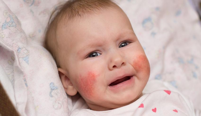 az arcon a bőr lehámlik és vörös foltok jelennek meg)