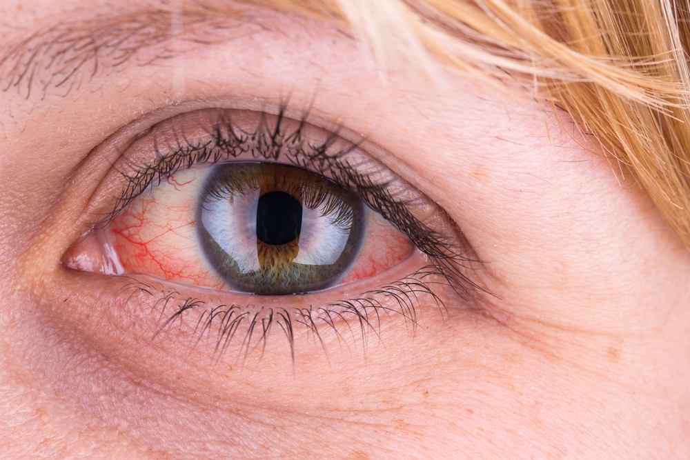 Lettország pikkelysömör kezelése bőrfolt vörös foltokkal a libadombok után