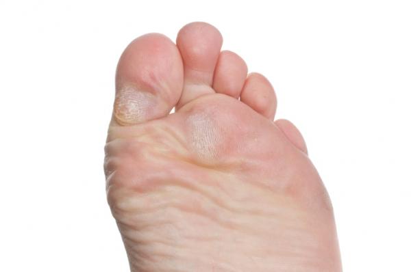 hogyan lehet eltávolítani a vörös foltokat a láb bőrkeményedéséből