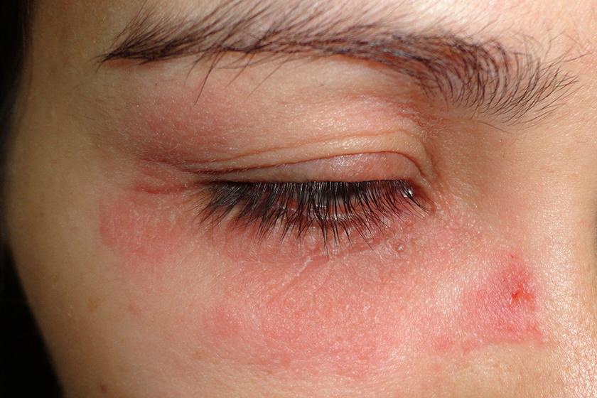 vörös foltok a szem alatt és viszketés