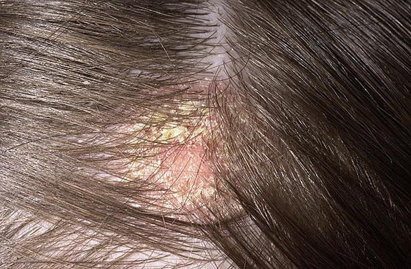 vörös foltok égtek ki az arcon pikkelysömör kezelése borz zsírral