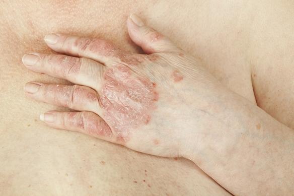 hogyan lehet pikkelysömör kezelésére rohadt ujjal vörös foltok az arcon kezelés