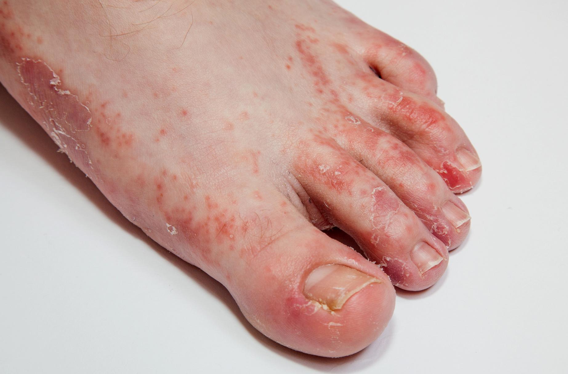 hogyan kell kezelni a lábán lévő vörös foltokat a gombától epiphyllum pikkelysömör kezelése