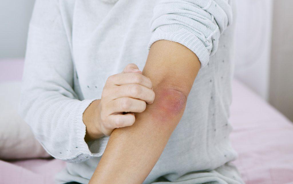 Gyógyszertári Praktikum: A psoriasis NEM fertőző betegség! – Semmelweis Médiasarok