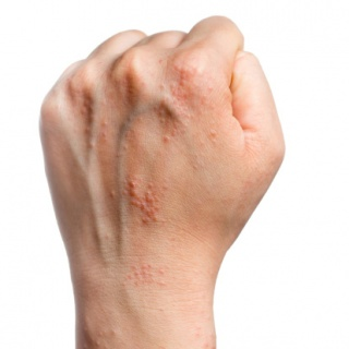 vörös foltok a testen a bőr alatt múmia alapú pikkelysömör kenőcs