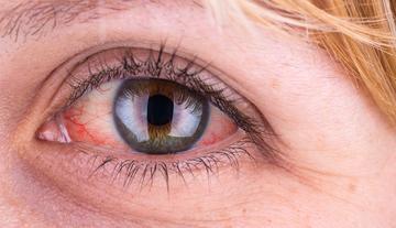 a szem alatti vörös foltok kezelése vörös foltok a testen fotó és kezelés
