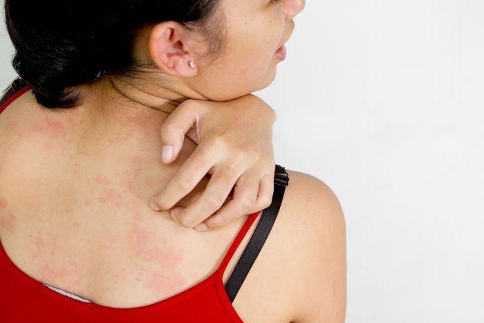 vörös foltok viszketnek és pikkelyesek az arcon hogyan kell kezelni a pikkelysmrt a testen otthon