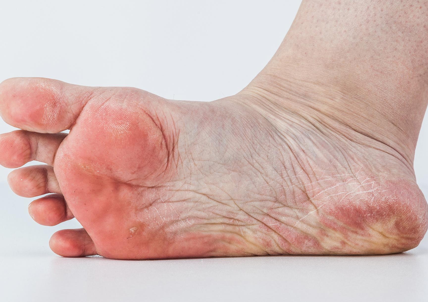 vörös foltok a lábakon a cipőtől