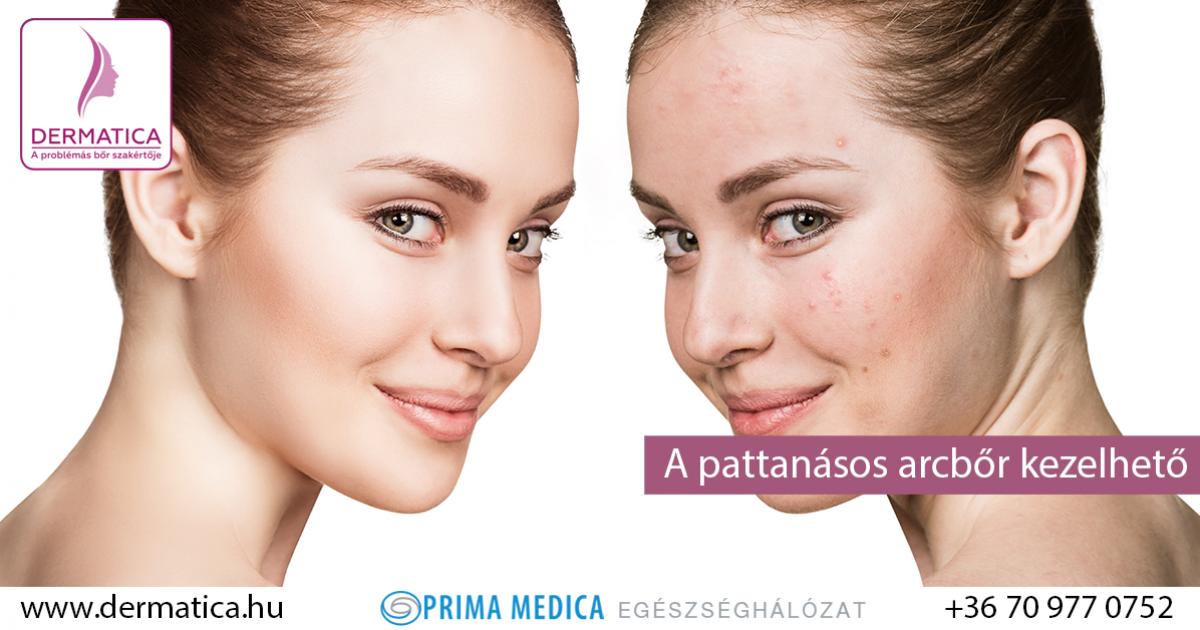 hogyan lehet meggyógyítani a fej és az arc pikkelysömörét vörös viszkető foltok a homlokán