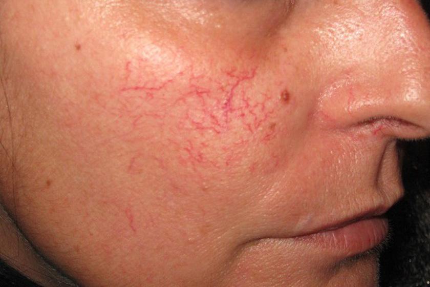 vörös folt a születéskor az arcon a lábán vörös folt vérrel