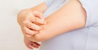 pikkelysömör kezelése betegtanács kenőcs B-vitaminnal pikkelysömörhöz