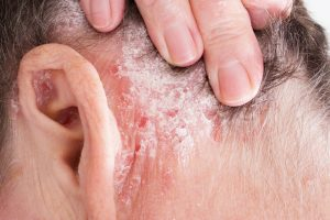 psoriasis peeling skin