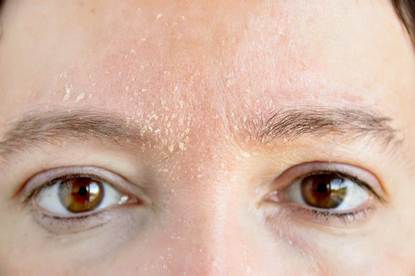 vörös foltok az arcon és a fejen fotó kéz láb pikkelysömör kezelése