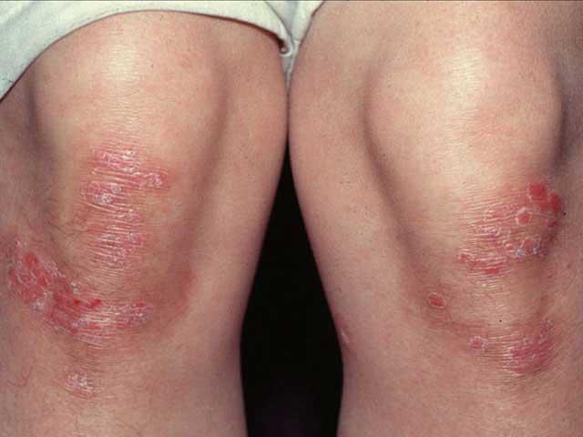 megszabadulni a pikkelysömörtől kátránnyal psoriasis severity classification