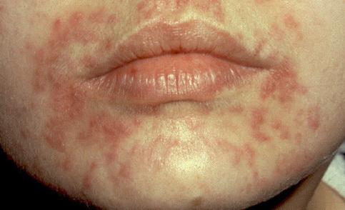 golden whisker pikkelysömör kezelése tenyér vörös foltokkal a bőr alatt