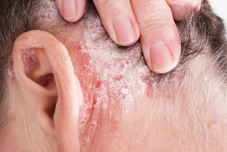 fejbőr pikkelysömör gyógyítható pikkelysmr gyógyszer