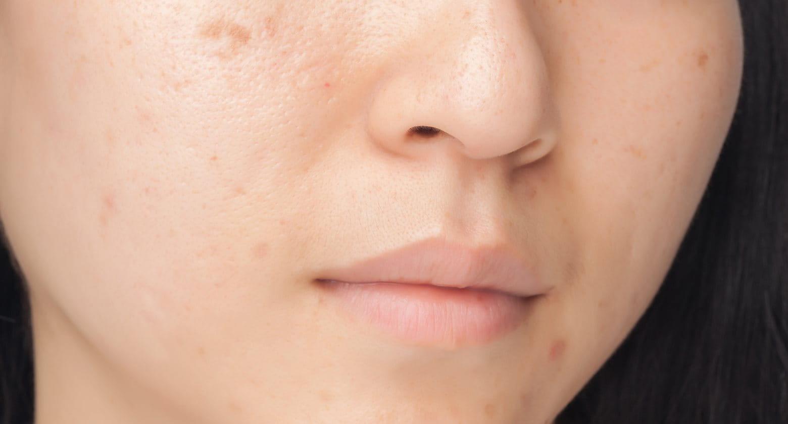 mi segíthet az arc vörös foltjain)