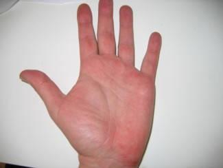 egy nagy vörös folt jelent meg a kézen