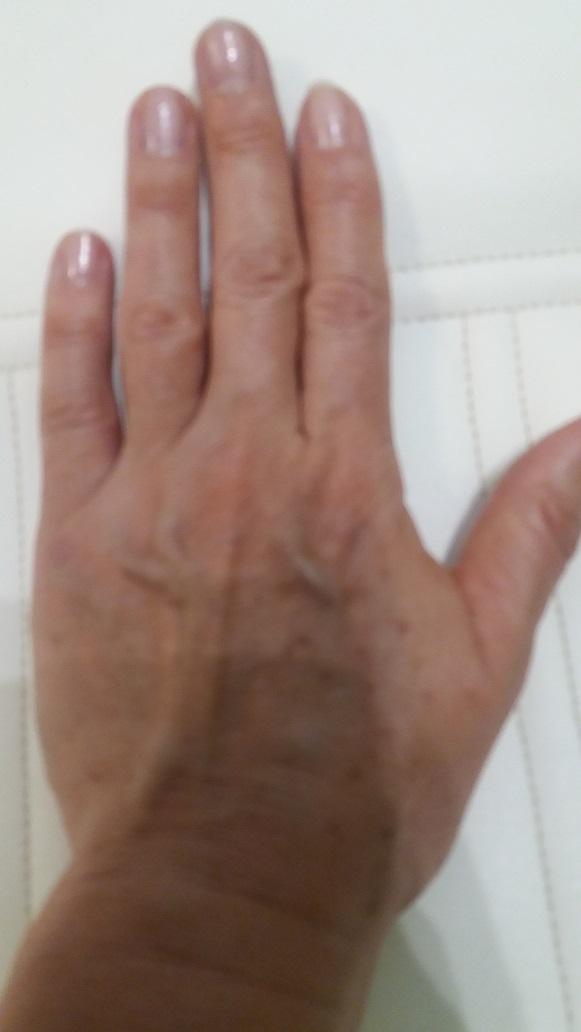 kreol kezelés pikkelysömör az arcon vörös foltok válnak nagyobbá
