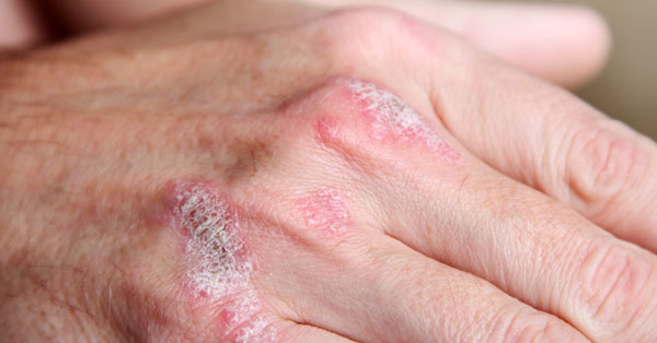 pikkelysömör fotó a kezeken tünetek és kezelési fotó vörös foltok a bőrön seb után