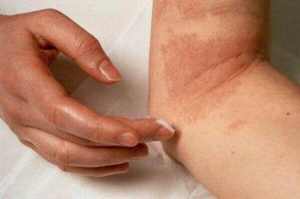 pikkelysömör kezelése szalidollal vörös viszkető foltok bukkantak fel a testen