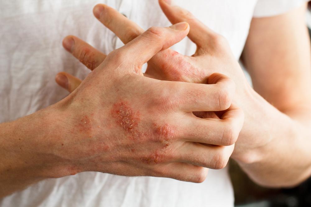 pikkelysömör a tenyereken otthoni kezels pikkelysömör lichen planus kezelés