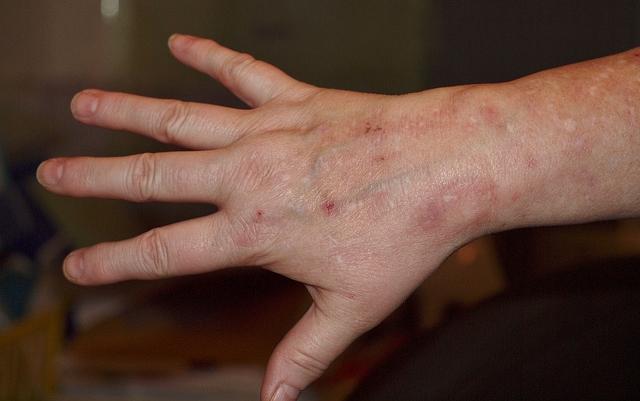 vörös durva foltok egy felnőtt karján