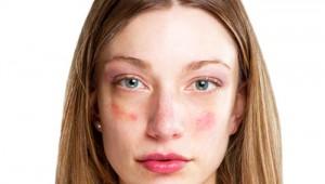 hatékony gyógyszerek pikkelysömörre a testen pikkelysömör a fejen fotókezelés népi gyógymódokkal