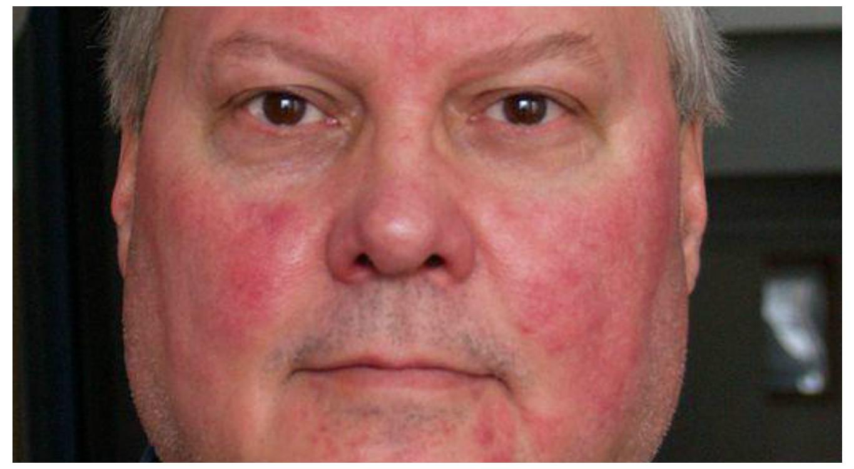 stelar készítmény pikkelysömörhöz kiütések az arc bőrén vörös foltok formájában a felnőttek fotóin