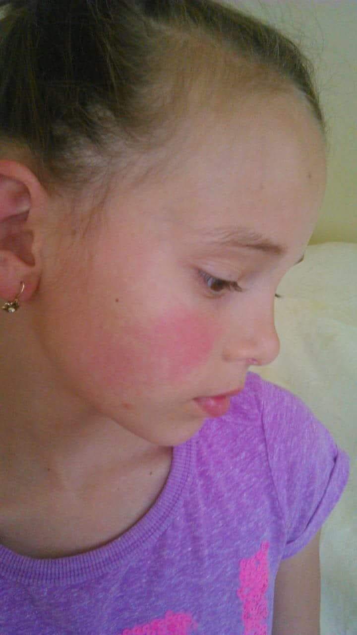 jojobaolaj pikkelysömör kezelése vörös foltok a száraz bőrön a testen
