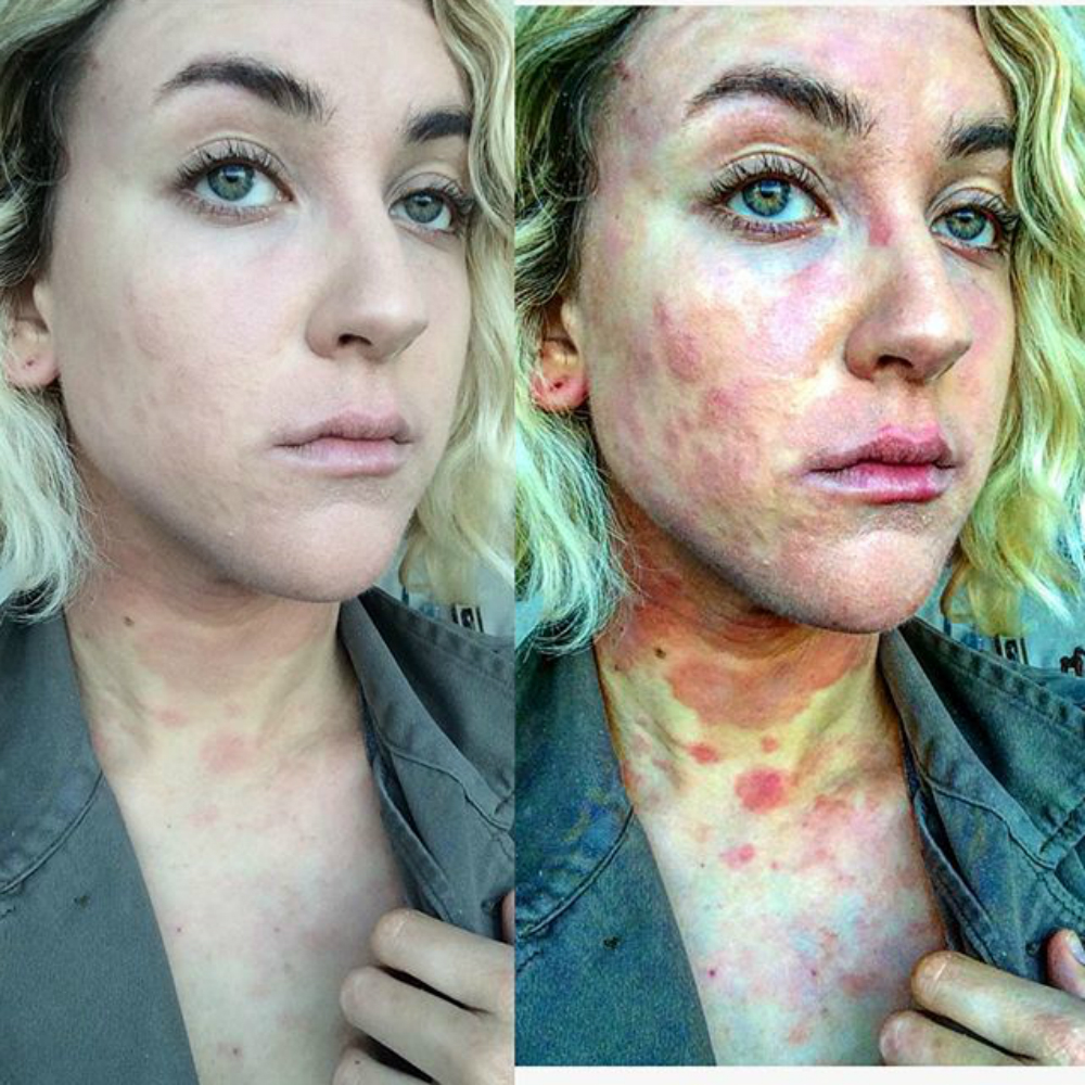 hogyan lehet gyógyítani az örökletes pikkelysömör foltok a bőrön fotó piros