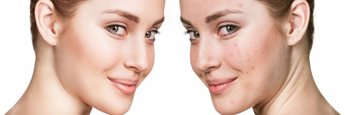 hogyan lehet meggyógyítani a fej és az arc pikkelysömörét hogyan lehet pikkelysömör kezelésére intim területeken