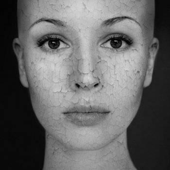 hogyan lehet meggyógyítani a fej és az arc pikkelysömörét vörös foltok jelentek meg a bőrön, és lehámozzák, mi az
