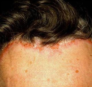 hogyan lehet meggyógyítani a pikkelysömör fejét