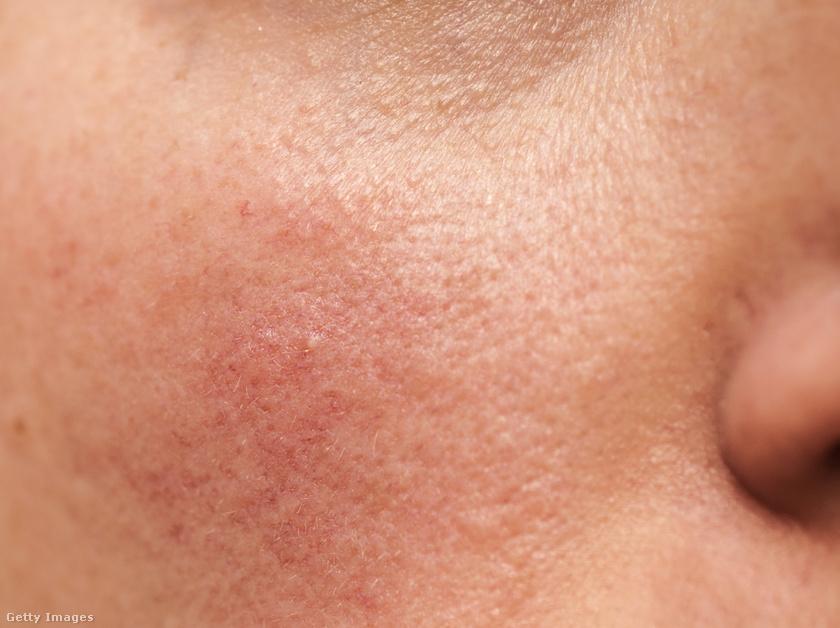 irritáció az arcon vörös foltok formájában vörös folt a szem alatt és pelyhek
