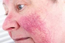 a hőtől vörös foltok jelennek meg az arcon