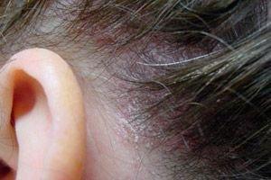 hogyan lehet pikkelysömör gyógyítani népi kenőccsel a karok alatt vörös foltok viszketnek