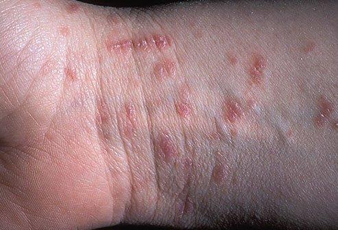 hogyan kezelik a test pikkelysömörét? népi gyógymódok az arcon lévő vörös foltok kezelésére