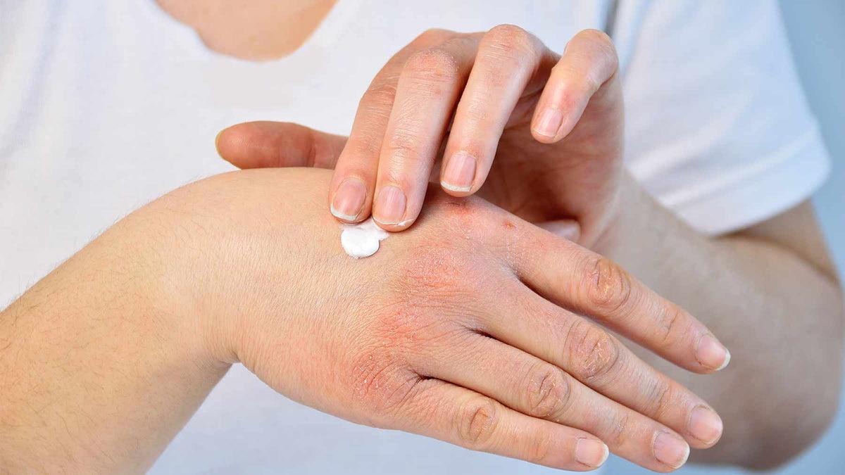 Bőrgyógyászat, Konzultáció, általános vizsgálat - Bőrgyógyász