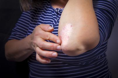 népi gyógymódok pikkelysömör és ekcéma kezelésére vörös foltok a karokon és a háton