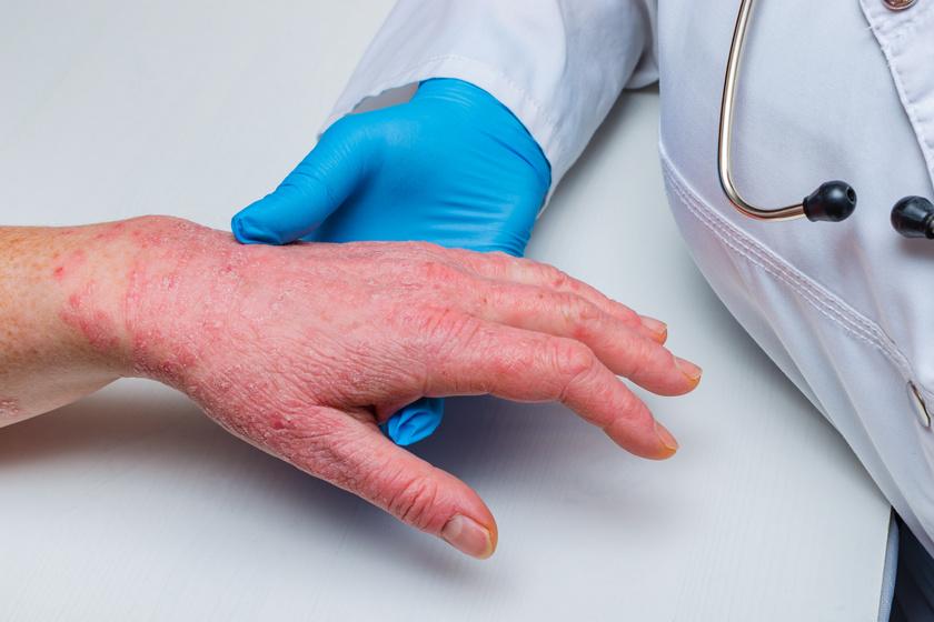 vörös foltok a bal kéz tenyerén Tibeti pikkelysömör kezelései