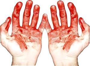 álomkönyv vörös folt a kezén vörös foltok a testen kezelést okoznak