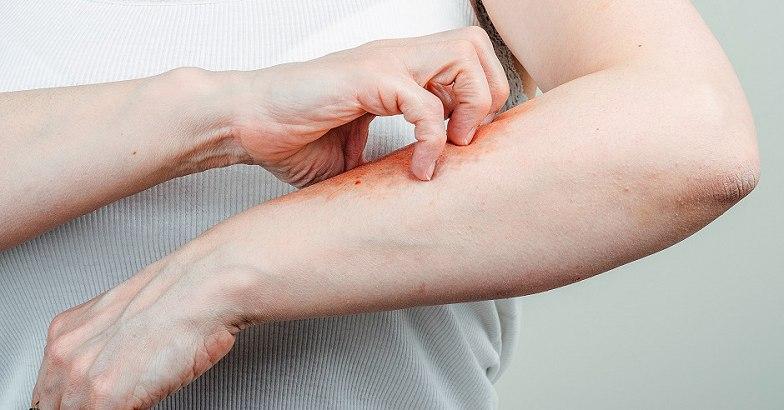 vörös foltok jelentek meg a lábán és viszkettek Cherkasy pikkelysömör kezelése