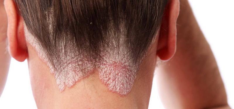 gyógyszer pikkelysömörre az arcon lábát vörös foltok borítják