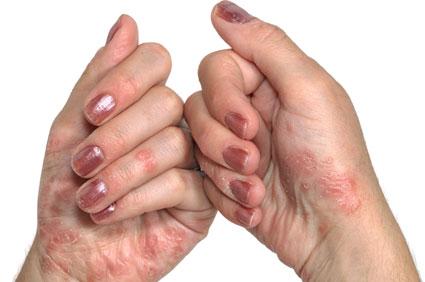 Dr. hadorkin pikkelysömör kezelés vélemények izgalommal vörös foltok jelennek meg kezelés