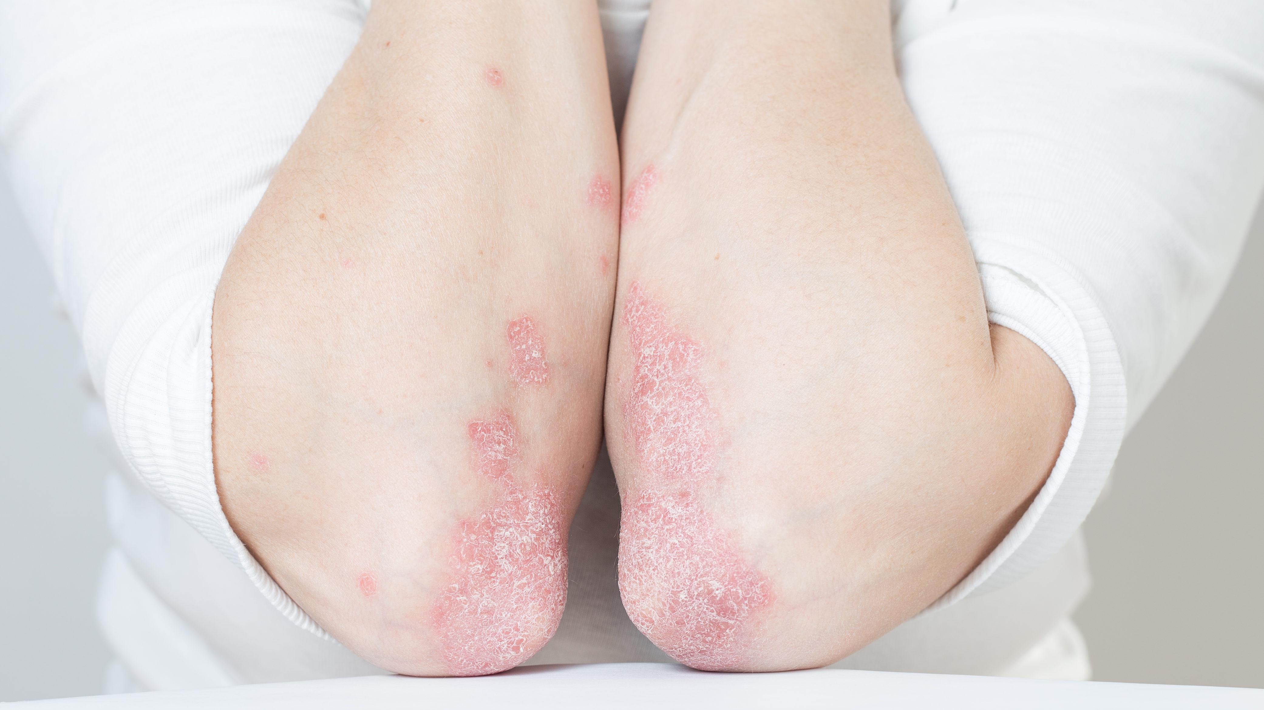a pikkelysömör kezelésének legfrissebb hírei 2021 kozmetikumok vörös foltok az arcon