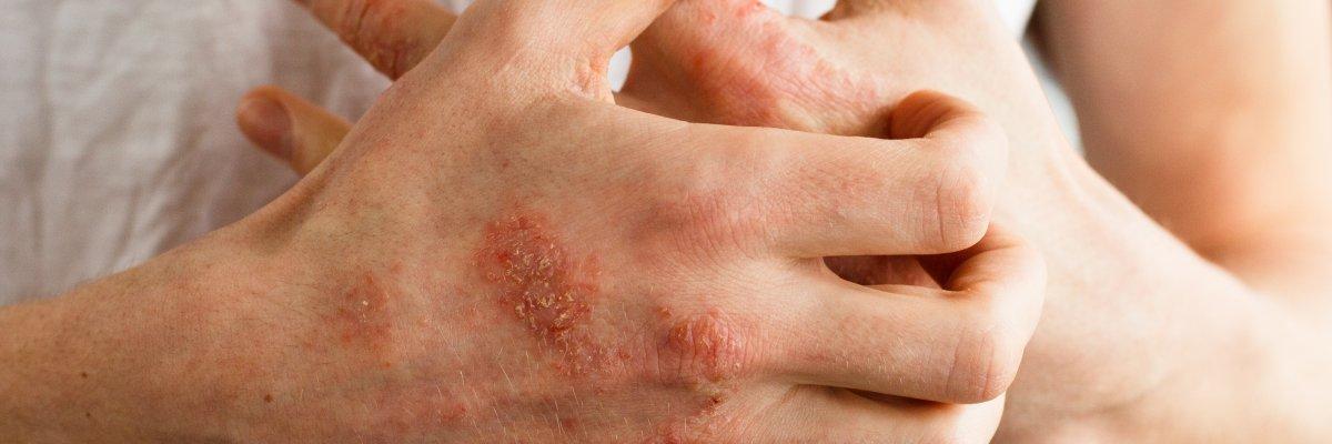 pikkelysömör tünetei és kezelése felnőtteknél